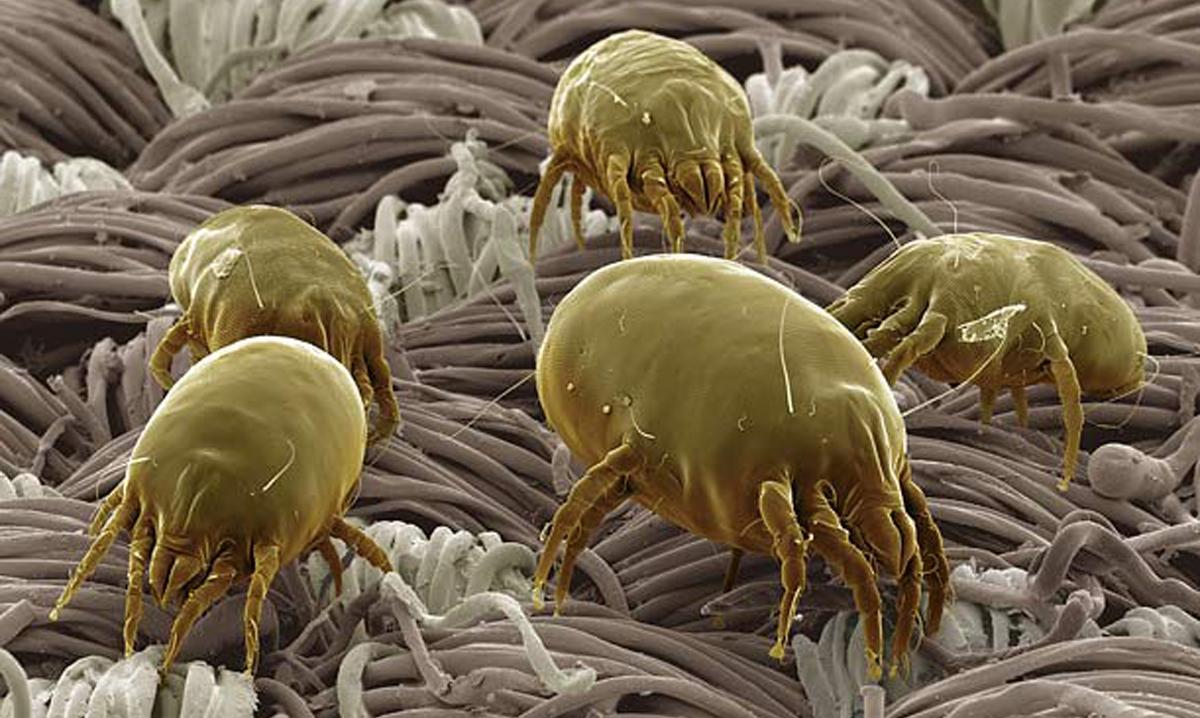 Fotos de tipos de sarna en humanos 3
